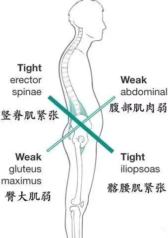 久坐造成腰肌劳损,学会6个体式提升腹部力量,呵护脊椎健康