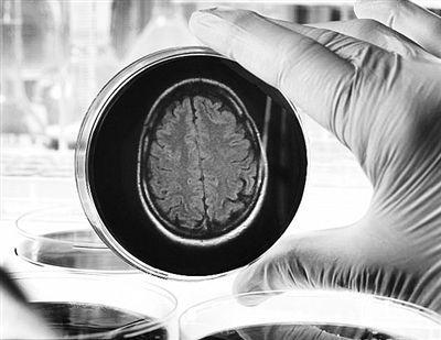"""人脑类器官:器皿中的""""黄豆""""开始""""发芽"""""""