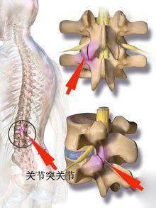为什么闪腰的时候一下就不能动了?锻炼哪里可减少腰椎小关节紊乱