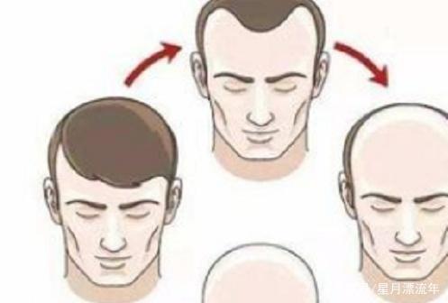 毛发移植手术后的效果可以保持多久?是不很快又会再脱落呢?