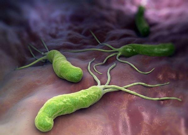 """胃中有""""幽门螺杆菌""""身体可能有4个表现,多吃它,杀菌消炎护胃"""