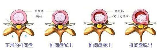 腰椎间盘突出还腰肌劳损,这种病会不会影响以后就业呢?