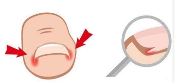老中医:脚趾甲长进肉里钻心疼?不用拔甲,一招