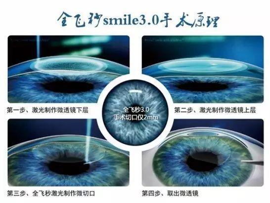 武汉佰视达眼科全飞秒激光治疗近视眼手术医院