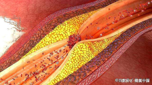 颈部血管发现长了斑块代表什么意义,有什么危