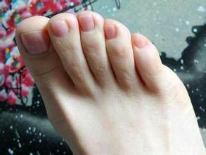 小脚趾指甲分两半竟藏惊人秘密,能看出你是否
