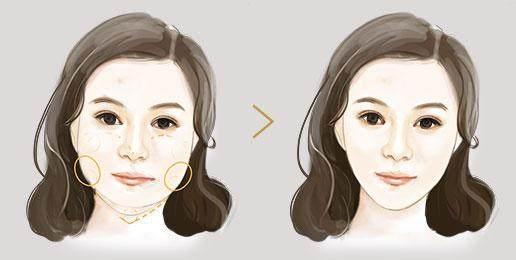 希思医疗整形打几次瘦脸针可以定型?有效吗?-轻博客